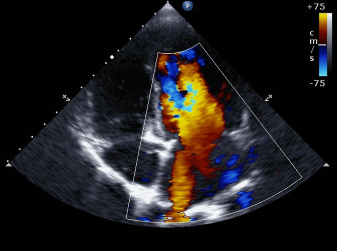 echocardiogram_thumb